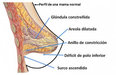 tuberosa anatomia